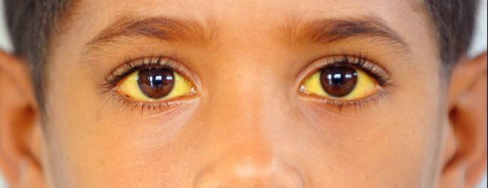 Синдром Избитого Ребенка